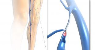 319931 310x165 - Krampfadern frühzeitig behandeln: ELVeS®-Lasertherapie setzt neue Maßstäbe