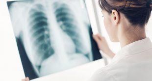 319949 310x165 - Neue Diagnostik bei Asthma und COPD